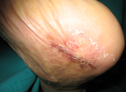 images of acute necrotising ulcerative gingivitis